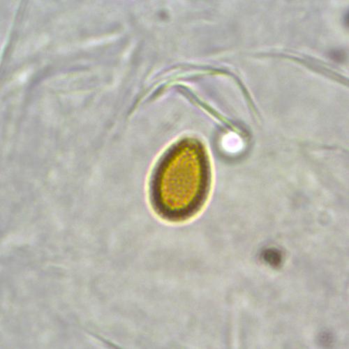 Basidiomycota | AirAllergy be